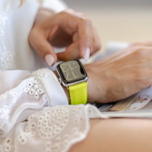 Laser Lemon-Apple-watch-yellow-fluo-band-on-a-white-dress
